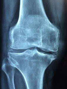 Lee más sobre el artículo Osteoporosis. Medidas nutricionales para prevenirla
